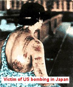 Victim of US bombing in Japan